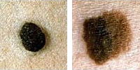 Photo comparing normal and melanoma moles showing color