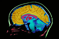 A  picture of a MRI brain scan film