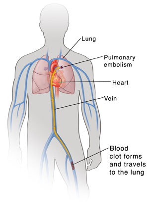 Human torso showing heart, lungs, and major veins. Blood clot is in leg vein with arrow showing it traveling up vein to lung causing pulmonary embolism.