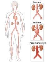 Illustration of the different types of abdominal aortic aneurysm