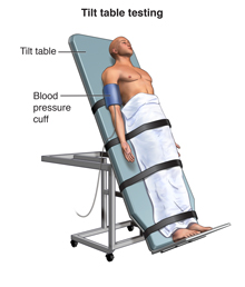 A man is strapped to a tilted table. He is wearing a blood pressure cuff.