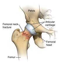 Femoral neck fracture