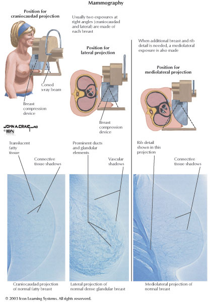 mammography procedure